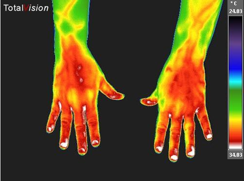 thermal image of hand